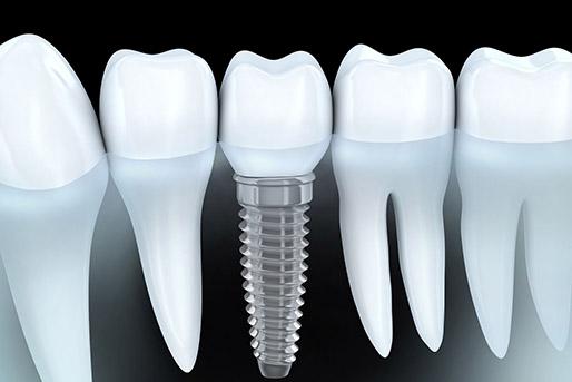 impianti denti milano