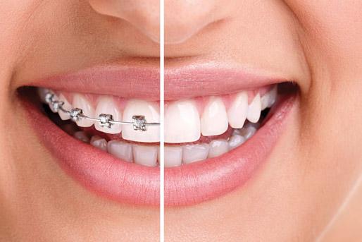ortodonzia dentista milano
