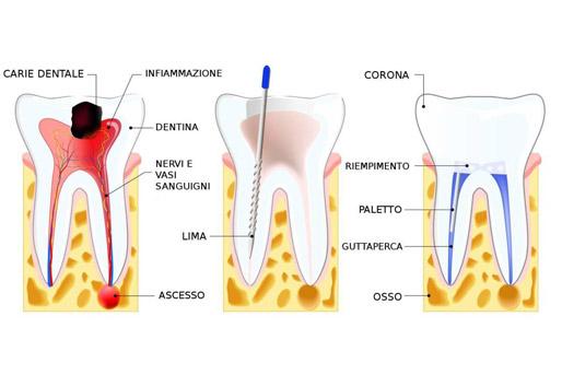 devitalizzazione denti milano